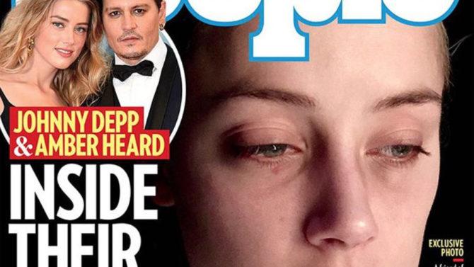Nuevas fotos de Amber Heard golpeada
